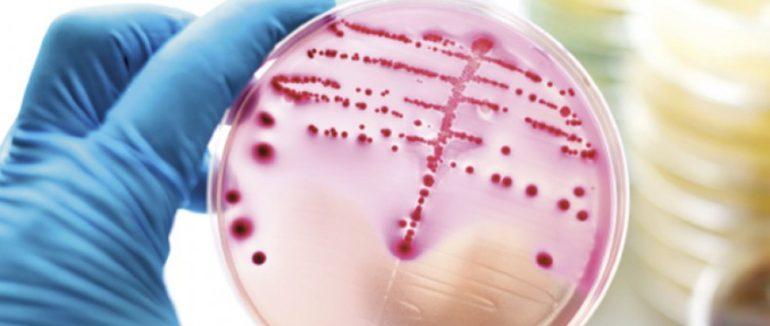 LAB v Chomutově sleduje antibiotickou rezistenci