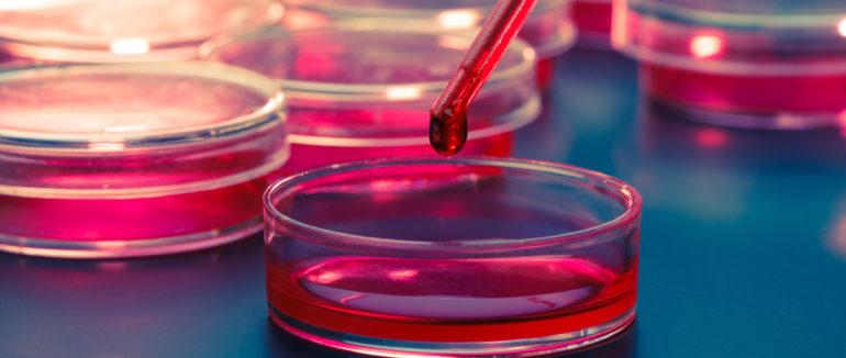 Karcinom děložního čípku, co lze testovat